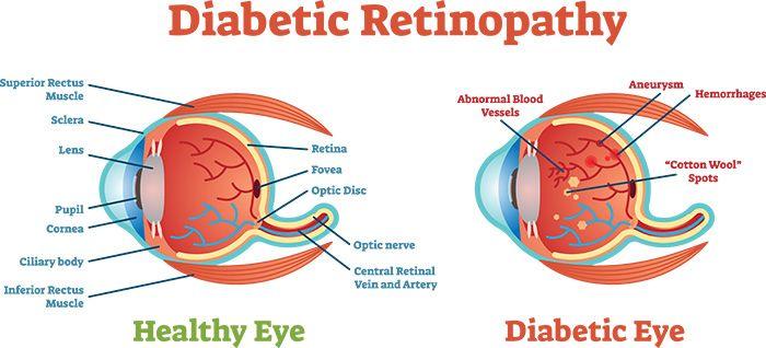 diabetic retinopathy jpg
